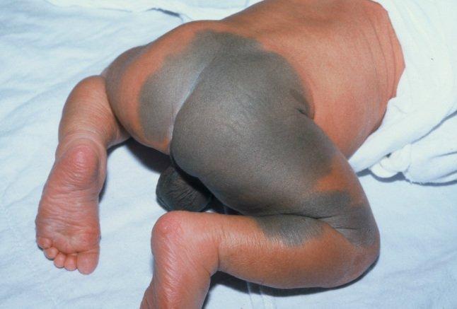 البقع المنغولية عند الاطفال