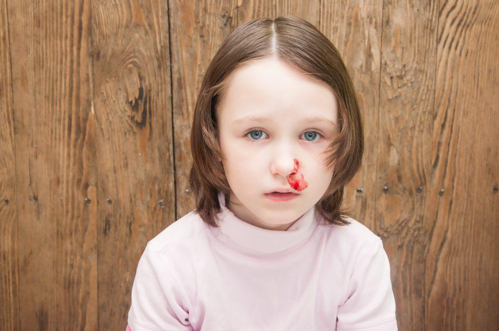 نزيف الأنف عند الاطفال اسبابه وكيفية التعامل معه