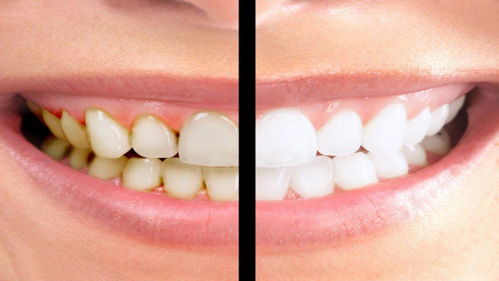 اصفرار الاسنان عند الاطفال