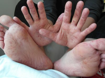 مرض اليد و القدم و الفم