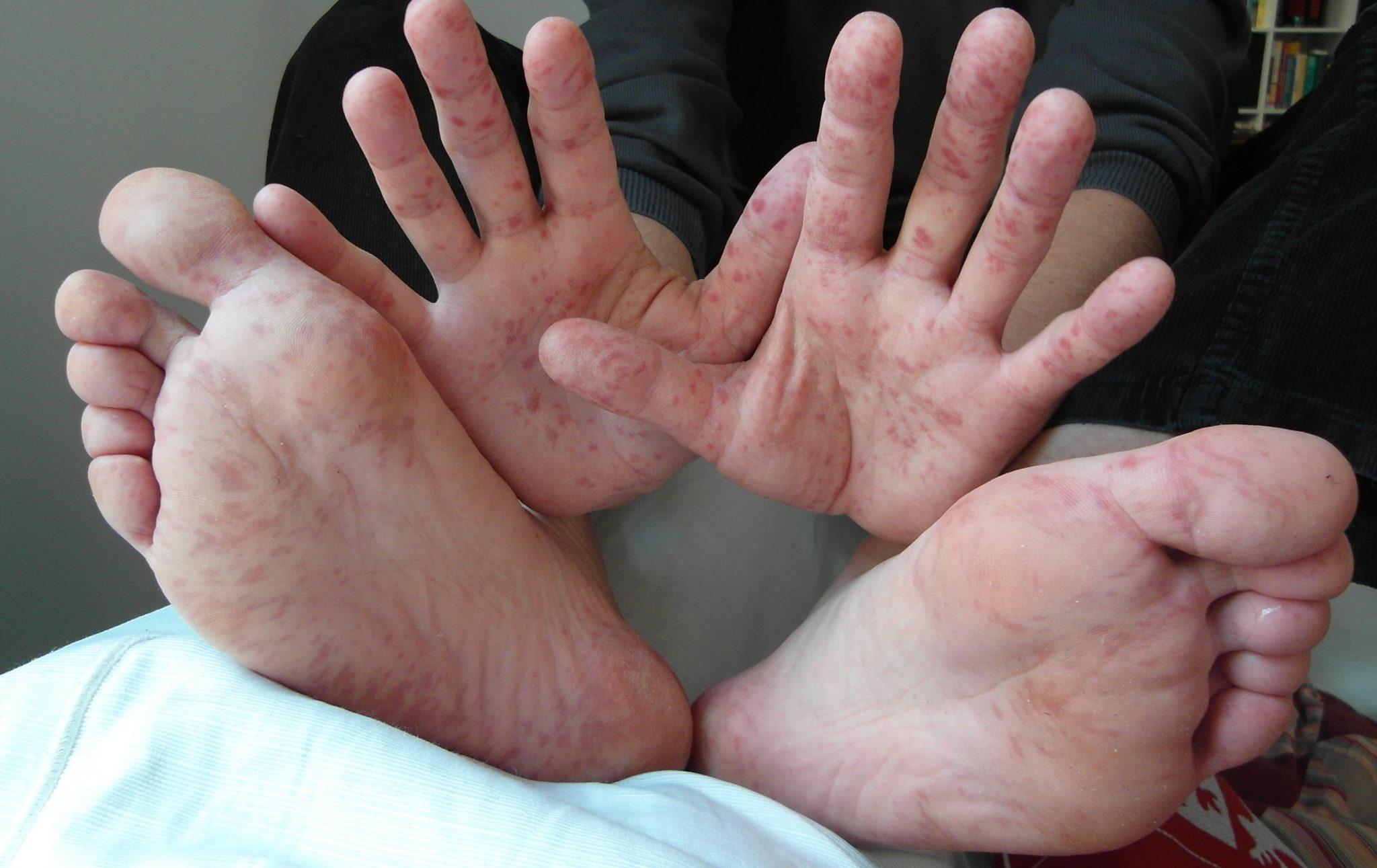 كل ما تريدون معرفته عن مرض اليد و القدم و الفم