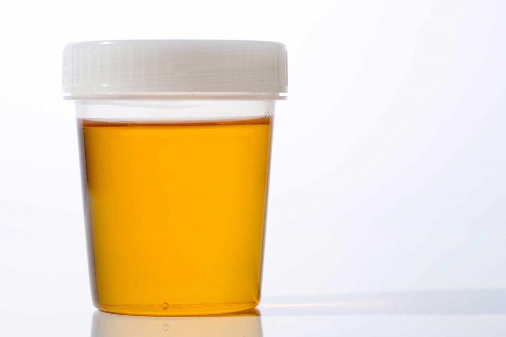 لون البول ومعرفة امراض الاطفال