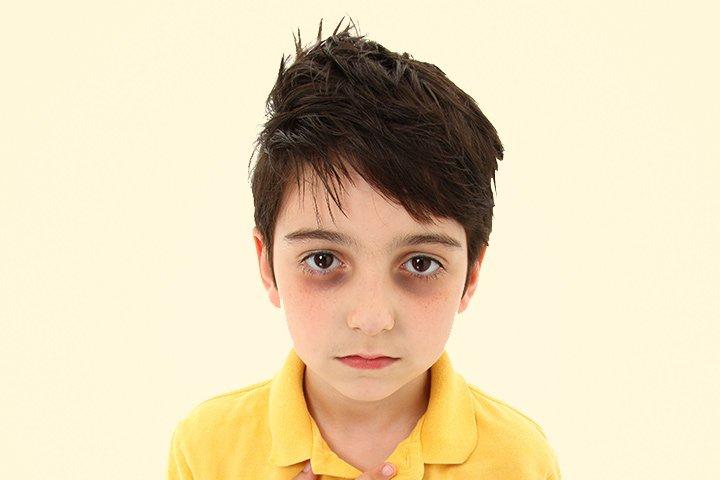 8 طرق للتخلص من الهالات السوداء حول العين عند الأطفال والكبار