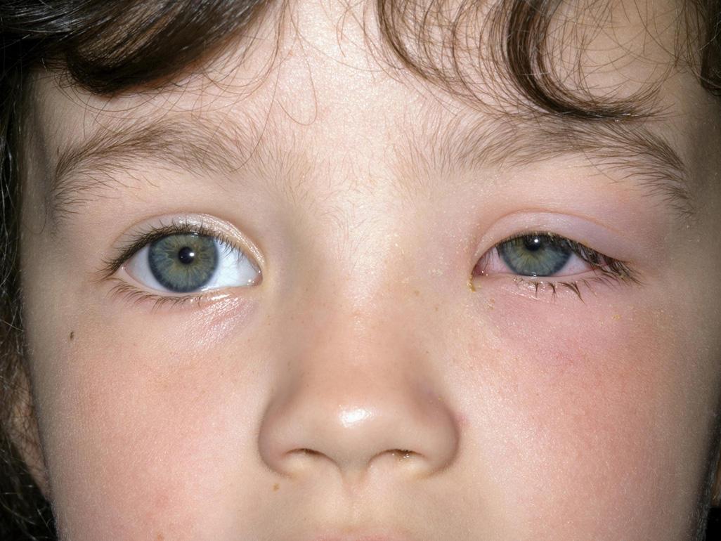 علاج التهاب العين عند الاطفال