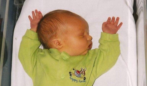 صفار الاطفال حديثي الولادة