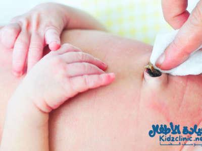 رائحة السرة عند المولود